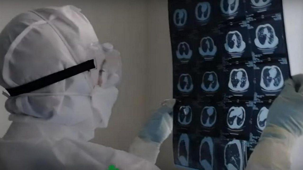 Пациентка с 80-процентным поражением лёгких рассказала, как её спасли врачи «ковидного» госпиталя
